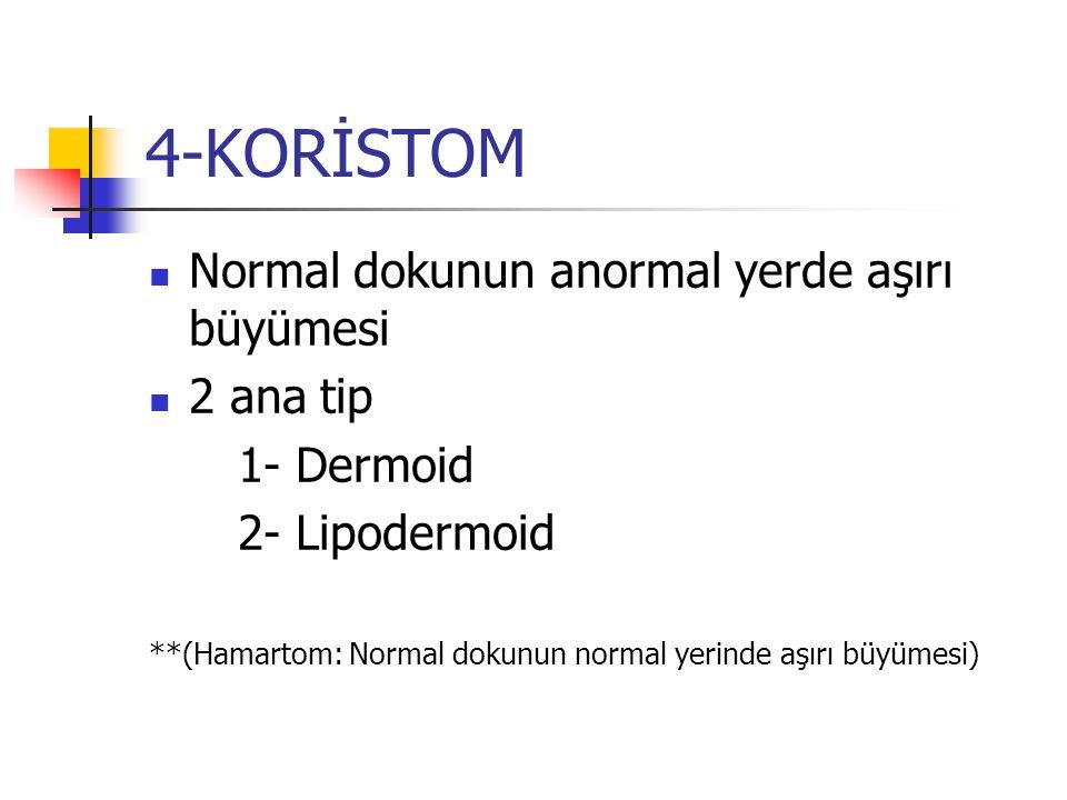 4-KORİSTOM Normal dokunun anormal yerde aşırı büyümesi 2 ana tip 1- Dermoid 2- Lipodermoid **(Hamartom: Normal dokunun normal yerinde aşırı büyümesi)