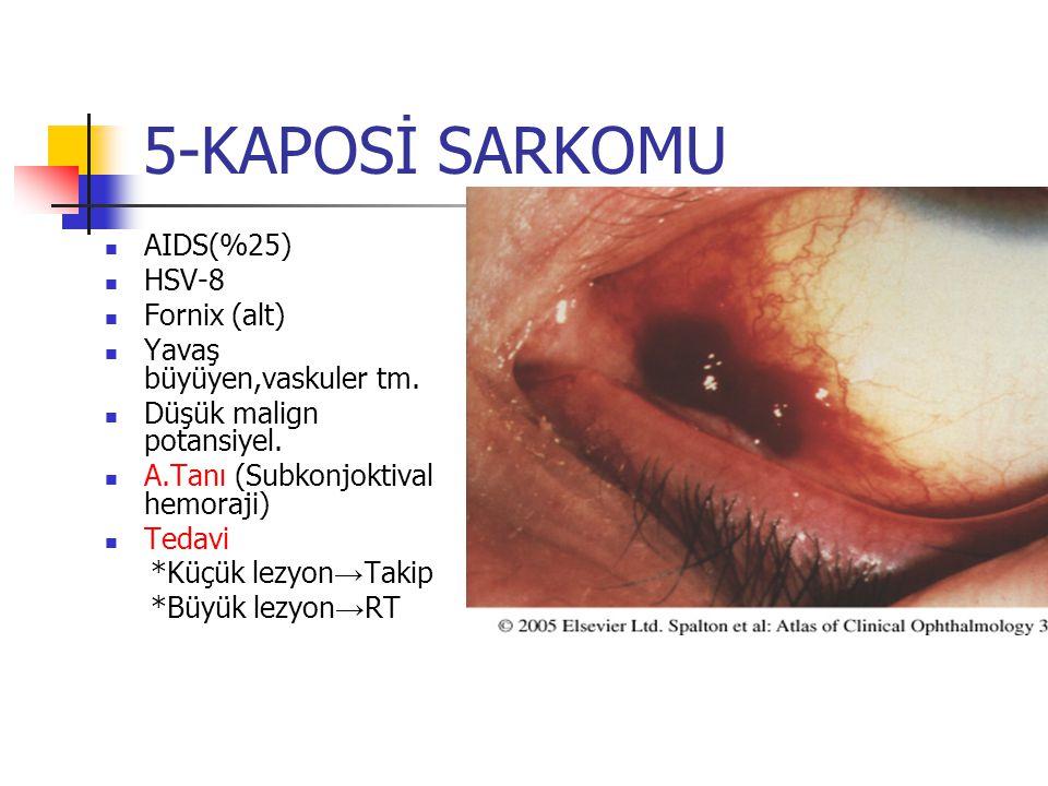 5-KAPOSİ SARKOMU AIDS(%25) HSV-8 Fornix (alt) Yavaş büyüyen,vaskuler tm. Düşük malign potansiyel. A.Tanı (Subkonjoktival hemoraji) Tedavi *Küçük lezyo