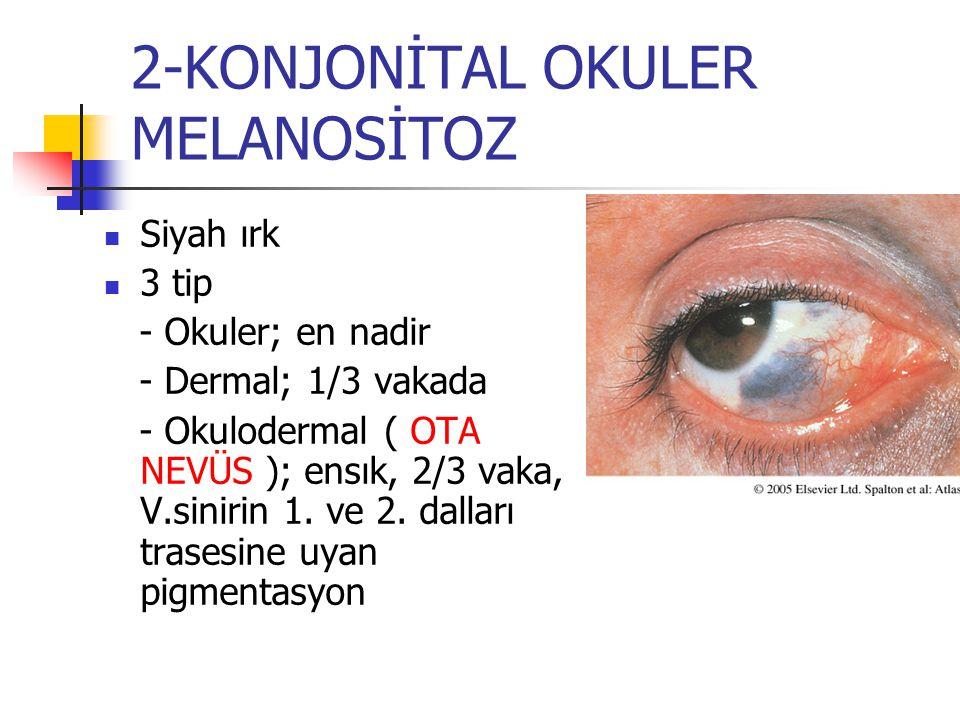 2-KONJONİTAL OKULER MELANOSİTOZ Siyah ırk 3 tip - Okuler; en nadir - Dermal; 1/3 vakada - Okulodermal ( OTA NEVÜS ); ensık, 2/3 vaka, V.sinirin 1. ve
