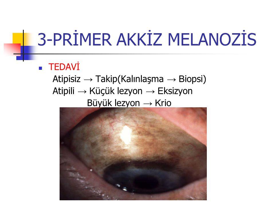 3-PRİMER AKKİZ MELANOZİS TEDAVİ Atipisiz → T akip(Kalınlaşma → B iopsi) Atipili → K üçük lezyon → E ksizyon Büyük lezyon → K rio