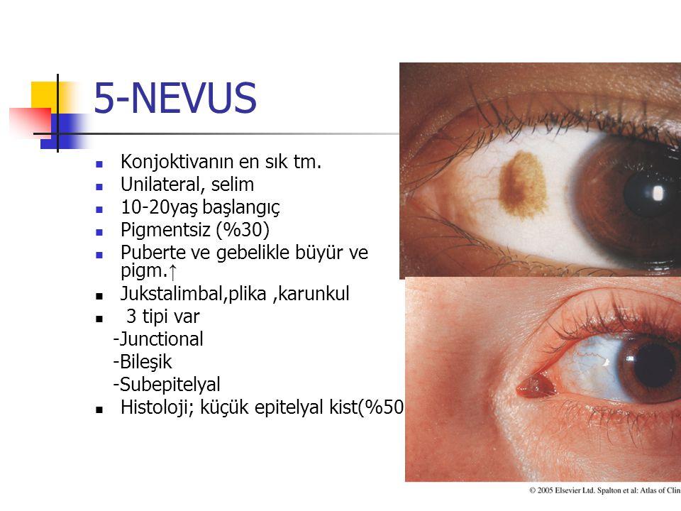 5-NEVUS Konjoktivanın en sık tm. Unilateral, selim 10-20yaş başlangıç Pigmentsiz (%30) Puberte ve gebelikle büyür ve pigm. ↑ Jukstalimbal,plika,karunk