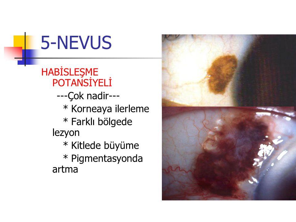 5-NEVUS HABİSLEŞME POTANSİYELİ ---Çok nadir--- * Korneaya ilerleme * Farklı bölgede lezyon * Kitlede büyüme * Pigmentasyonda artma