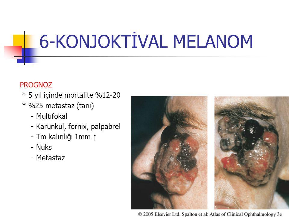 6-KONJOKTİVAL MELANOM PROGNOZ * 5 yıl içinde mortalite %12-20 * %25 metastaz (tanı) - Multıfokal - Karunkul, fornix, palpabrel - Tm kalınlığı 1mm ↑ -