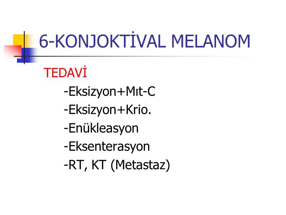 6-KONJOKTİVAL MELANOM TEDAVİ -Eksizyon+Mıt-C -Eksizyon+Krio. -Enükleasyon -Eksenterasyon -RT, KT (Metastaz)