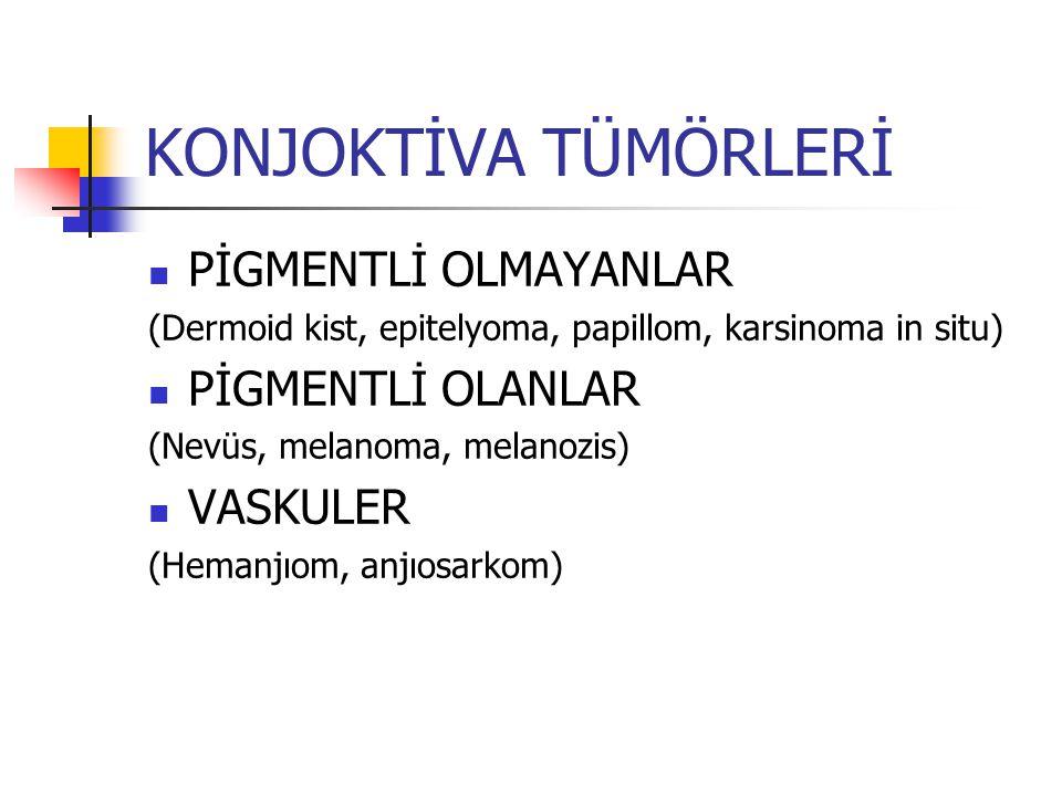 KONJOKTİVA TÜMÖRLERİ 1-BENİGN * Pigmente lezyon; nevüs, melanozis * Papillom * Dermoid, lipodermoid 2-PRE-MALİGN * Primer akkiz melanozis * İntraepitelyal neoplazi 3-MALİGN * Melanom * Skuamoz hücreli karsinom * Kaposi karsinom * Lenfoma