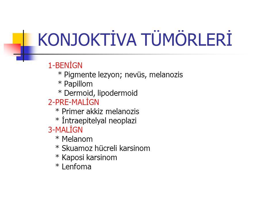 KONJOKTİVA TÜMÖRLERİ 1-BENİGN * Pigmente lezyon; nevüs, melanozis * Papillom * Dermoid, lipodermoid 2-PRE-MALİGN * Primer akkiz melanozis * İntraepite