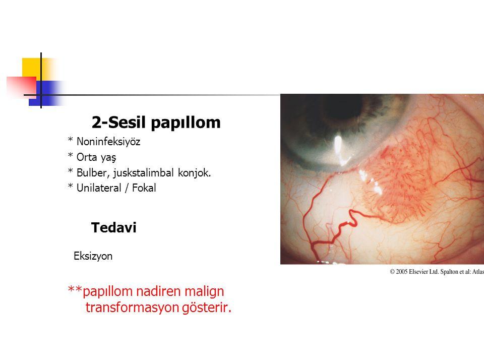 4-KORİSTOM DERMOİD * Çocuklarda ensık epibulber tm. * Limbus * Subkonjoktival kitle Tedavi Eksizyon