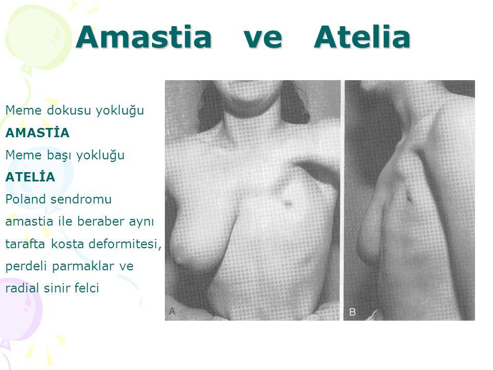 Amastia ve Atelia Meme dokusu yokluğu AMASTİA Meme başı yokluğu ATELİA Poland sendromu amastia ile beraber aynı tarafta kosta deformitesi, perdeli par