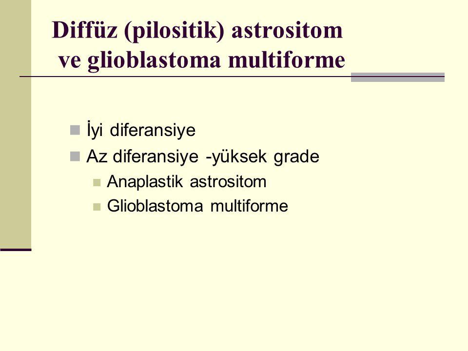 Diffüz (pilositik) astrositom ve glioblastoma multiforme İyi diferansiye Az diferansiye -yüksek grade Anaplastik astrositom Glioblastoma multiforme
