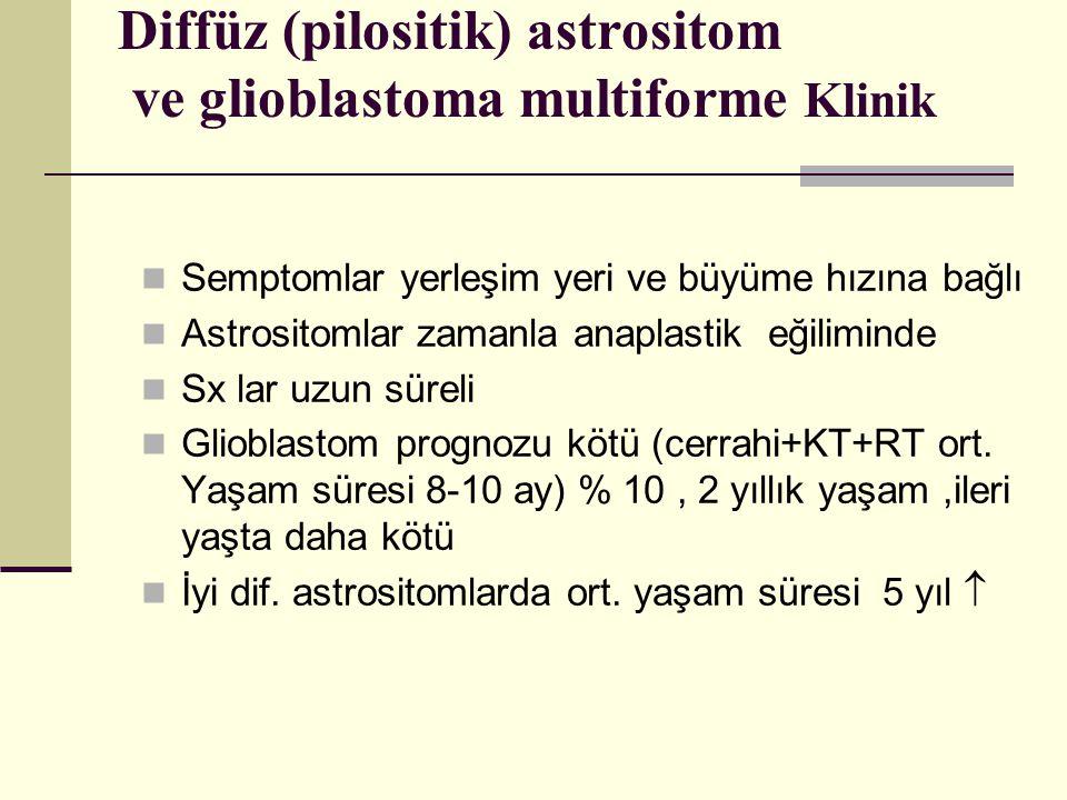 Diffüz (pilositik) astrositom ve glioblastoma multiforme Klinik Semptomlar yerleşim yeri ve büyüme hızına bağlı Astrositomlar zamanla anaplastik eğiliminde Sx lar uzun süreli Glioblastom prognozu kötü (cerrahi+KT+RT ort.