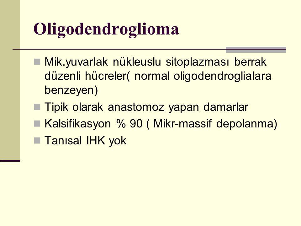Oligodendroglioma Mik.yuvarlak nükleuslu sitoplazması berrak düzenli hücreler( normal oligodendroglialara benzeyen) Tipik olarak anastomoz yapan damarlar Kalsifikasyon % 90 ( Mikr-massif depolanma) Tanısal IHK yok