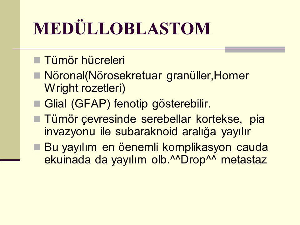 MEDÜLLOBLASTOM Tümör hücreleri Nöronal(Nörosekretuar granüller,Homer Wright rozetleri) Glial (GFAP) fenotip gösterebilir. Tümör çevresinde serebellar