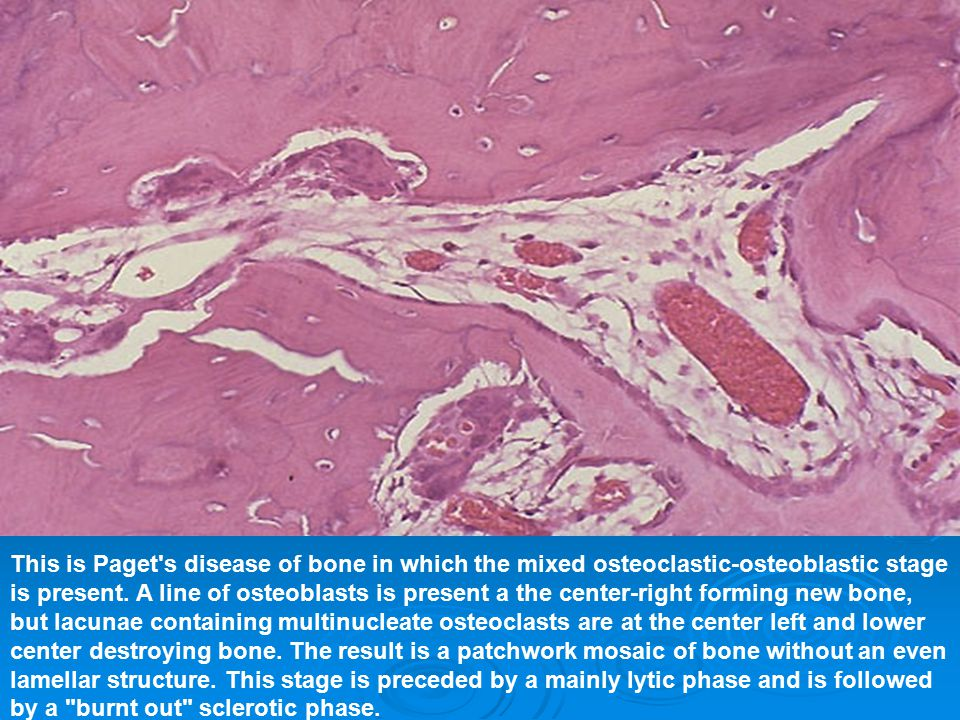 This is Paget's disease of bone in which the mixed osteoclastic-osteoblastic stage is present. A line of osteoblasts is present a the center-right for