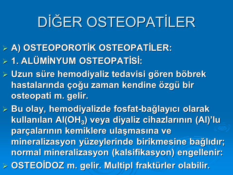 DİĞER OSTEOPATİLER  A) OSTEOPOROTİK OSTEOPATİLER:  1.