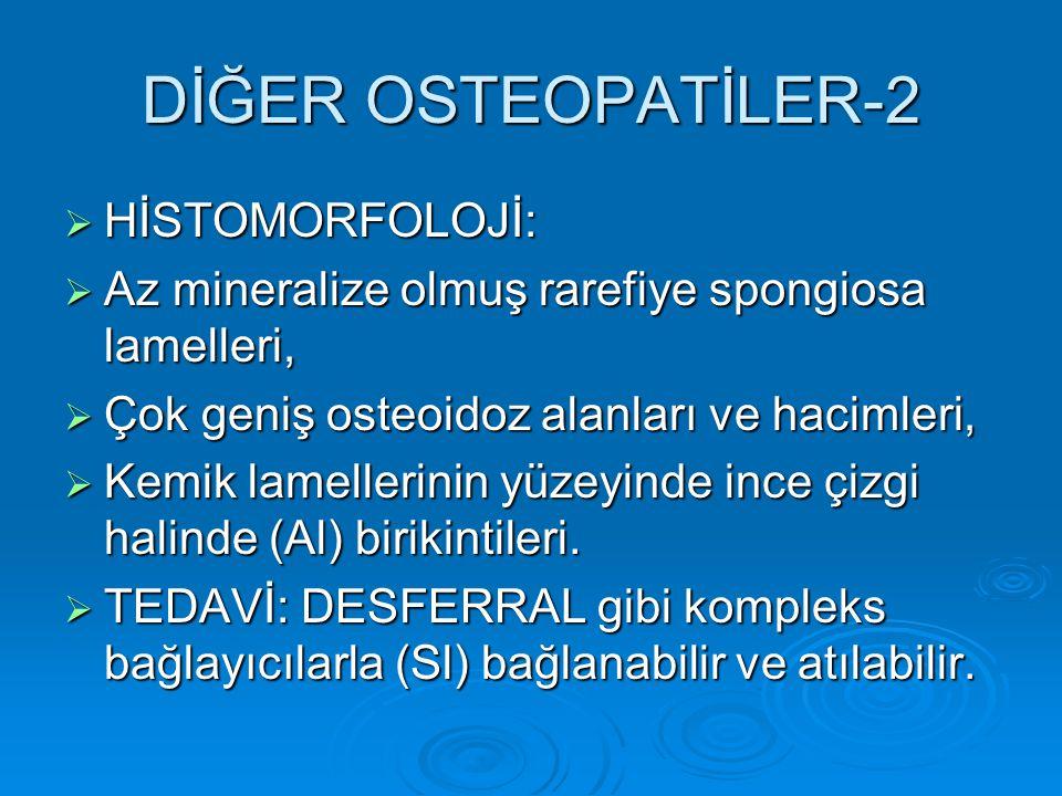 DİĞER OSTEOPATİLER-2  HİSTOMORFOLOJİ:  Az mineralize olmuş rarefiye spongiosa lamelleri,  Çok geniş osteoidoz alanları ve hacimleri,  Kemik lamellerinin yüzeyinde ince çizgi halinde (Al) birikintileri.
