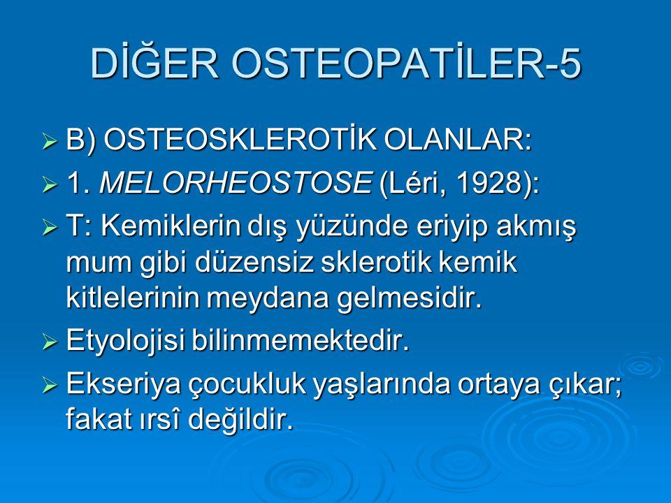 DİĞER OSTEOPATİLER-5  B) OSTEOSKLEROTİK OLANLAR:  1.