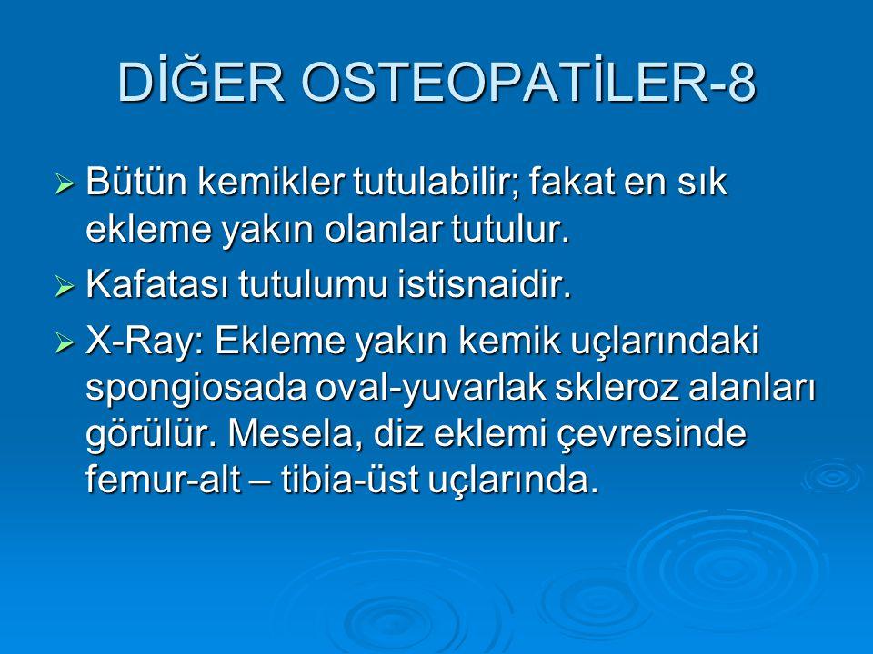 DİĞER OSTEOPATİLER-8  Bütün kemikler tutulabilir; fakat en sık ekleme yakın olanlar tutulur.