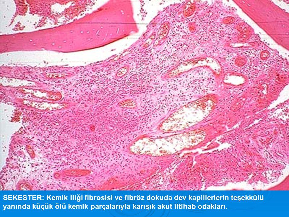 SEKESTER: Kemik iliği fibrosisi ve fibröz dokuda dev kapillerlerin teşekkülü yanında küçük ölü kemik parçalarıyla karışık akut iltihab odakları.