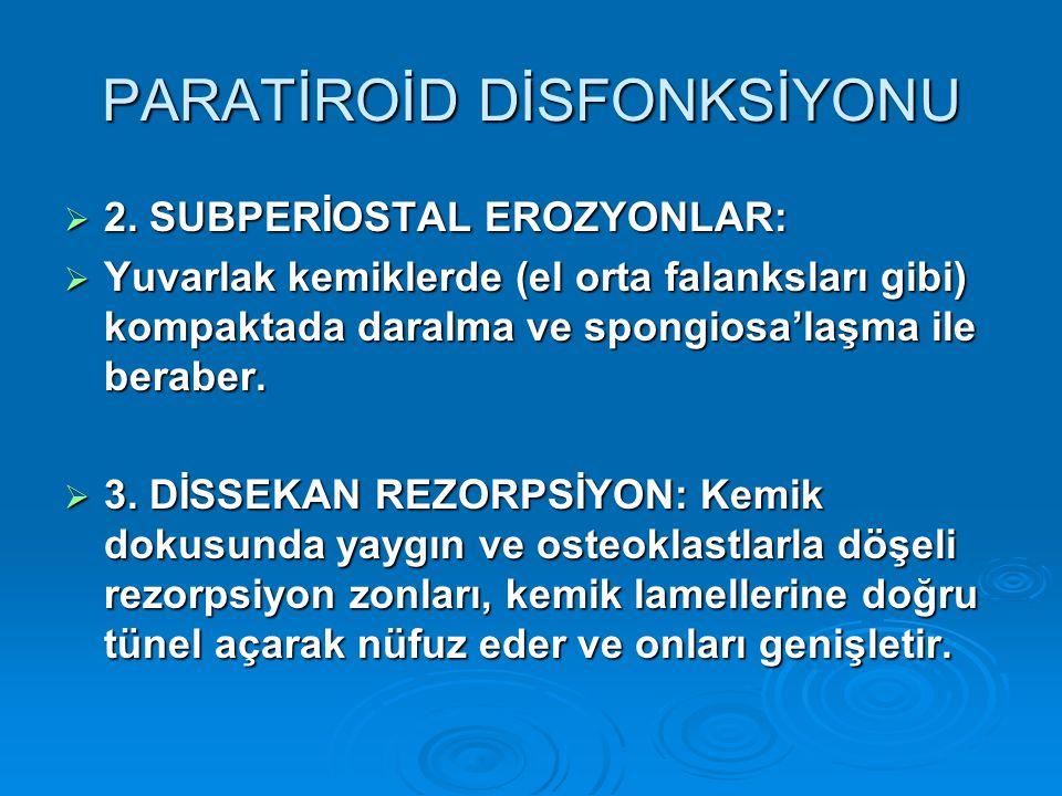 PARATİROİD DİSFONKSİYONU  2.