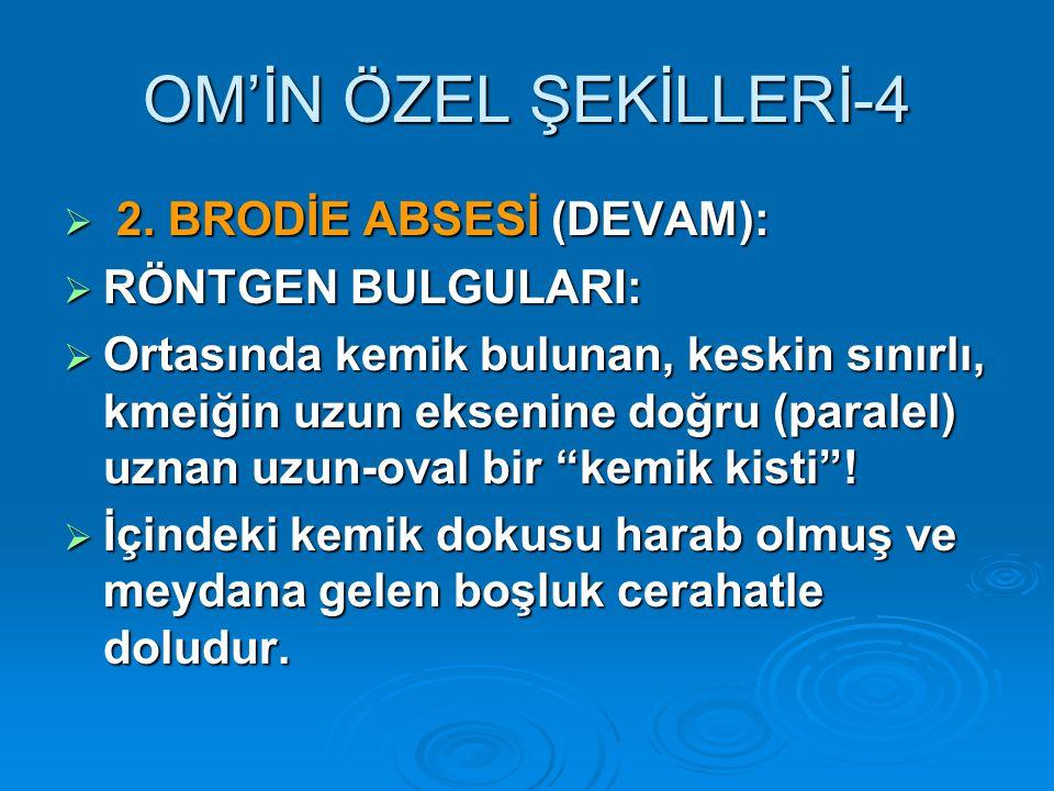 OM'İN ÖZEL ŞEKİLLERİ-4  2.