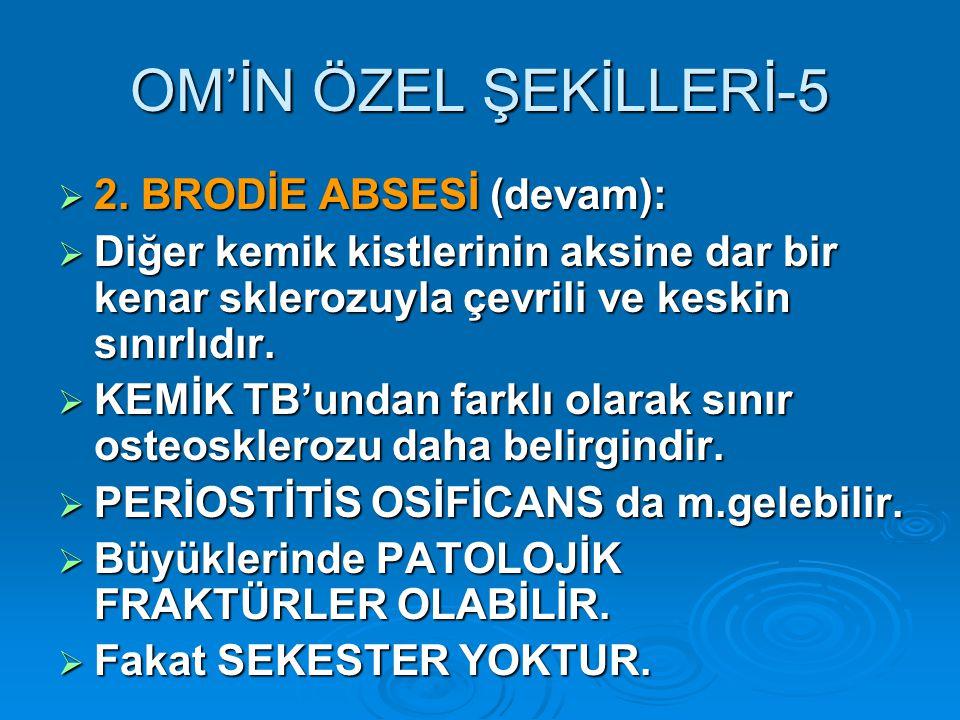 OM'İN ÖZEL ŞEKİLLERİ-5  2.