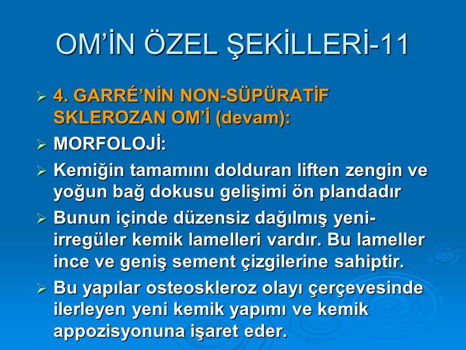 OM'İN ÖZEL ŞEKİLLERİ-11  4.