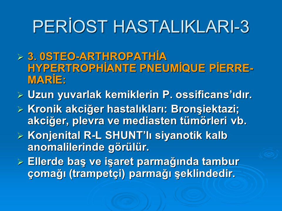 PERİOST HASTALIKLARI-3  3.