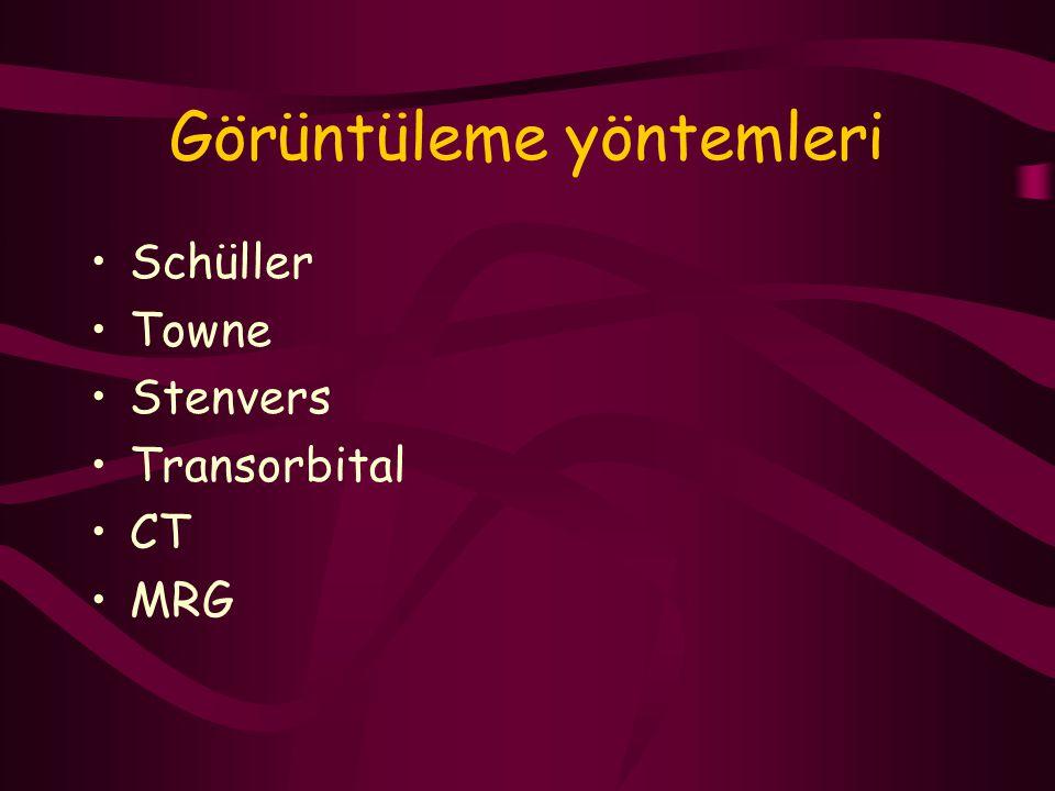Görüntüleme yöntemleri Schüller Towne Stenvers Transorbital CT MRG