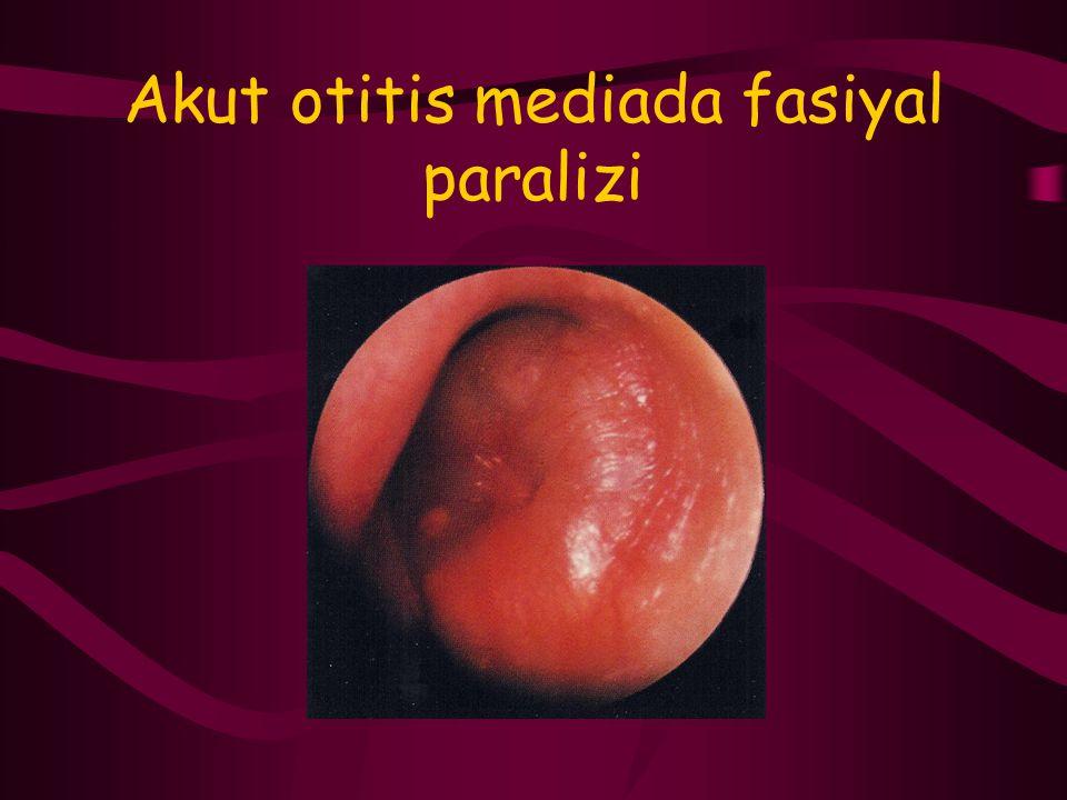 Akut otitis mediada fasiyal paralizi