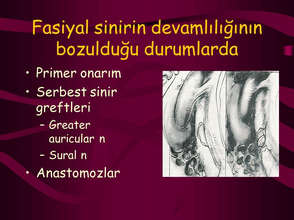 Fasiyal sinirin devamlılığının bozulduğu durumlarda Primer onarım Serbest sinir greftleri –Greater auricular n –Sural n Anastomozlar