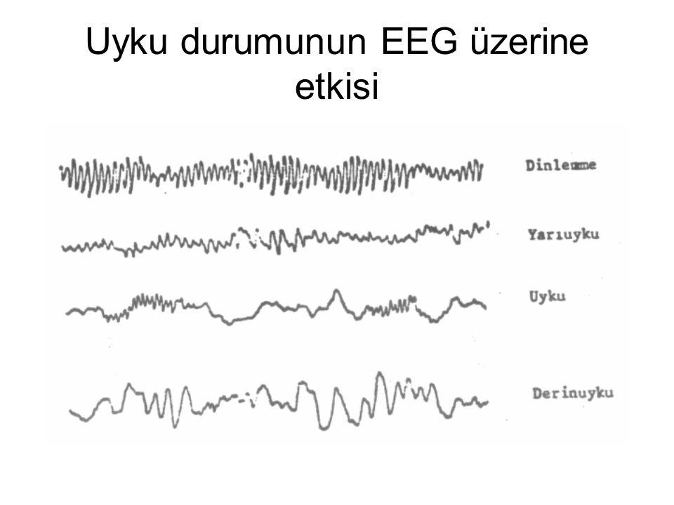 Uyku durumunun EEG üzerine etkisi