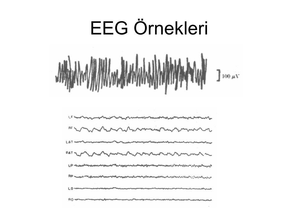 EEG Örnekleri