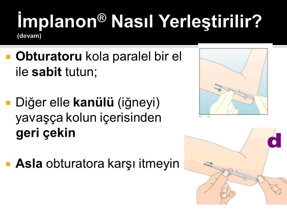  Obturatoru kola paralel bir el ile sabit tutun;  Diğer elle kanülü (iğneyi) yavaşça kolun içerisinden geri çekin  Asla obturatora karşı itmeyin