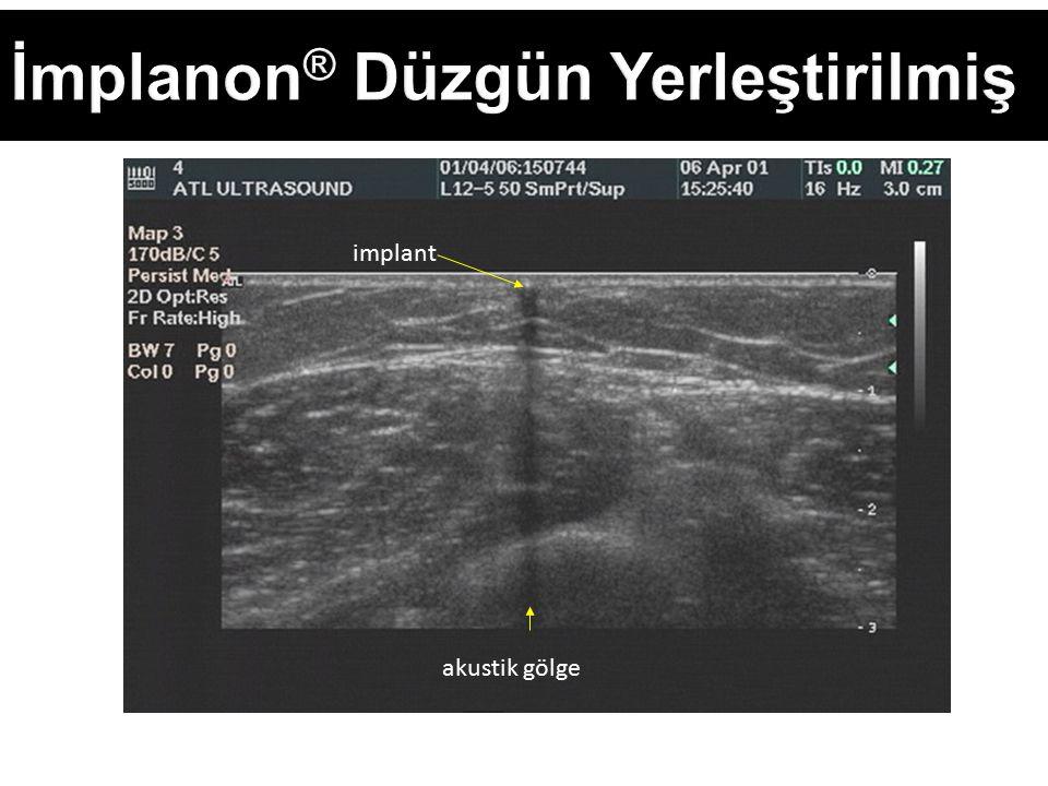 İmplanon ® Düzgün Yerleştirilmiş akustik gölge implant