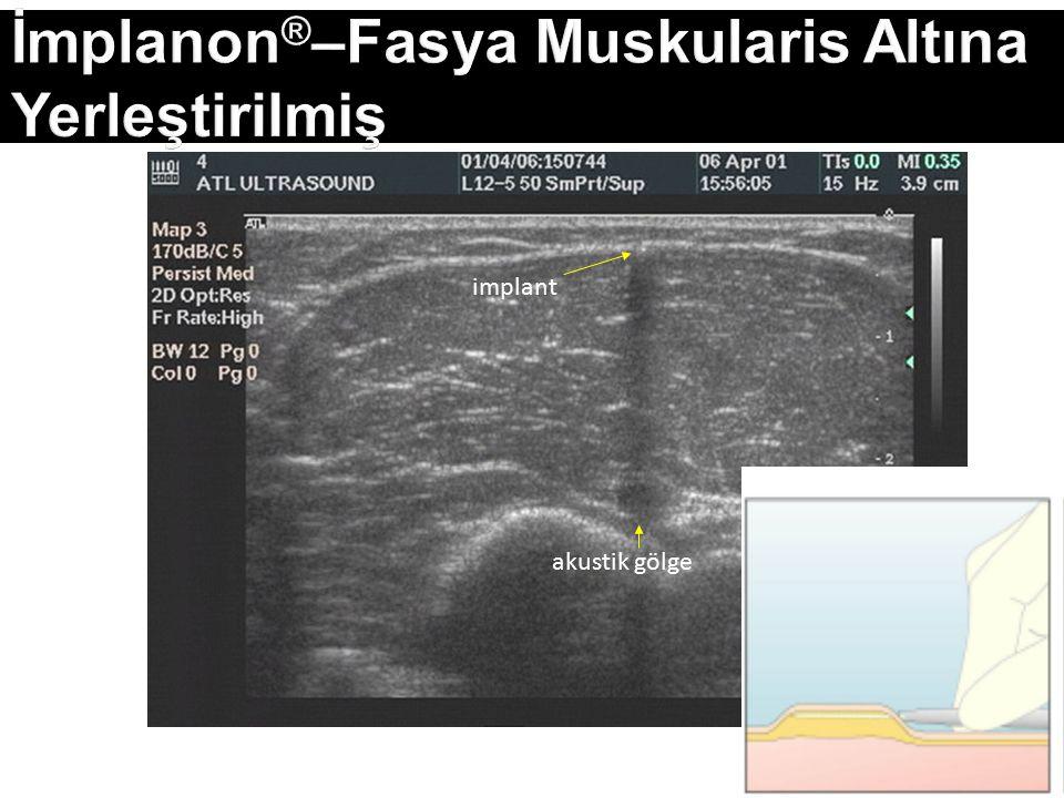 İmplanon ® –Fasya Muskularis Altına Yerleştirilmiş implant akustik gölge