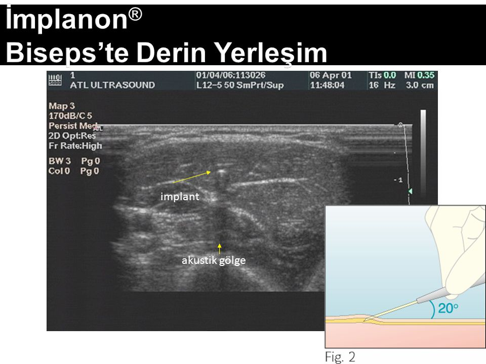 İmplanon ® Biseps'te Derin Yerleşim akustik gölge implant