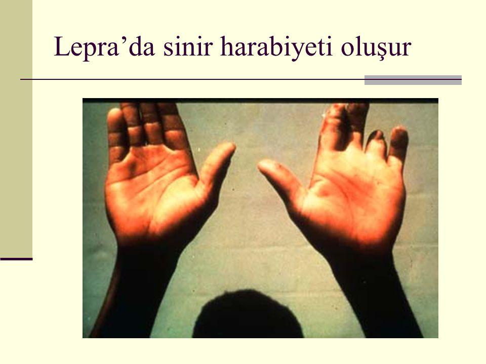 Lepra'da sinir harabiyeti oluşur