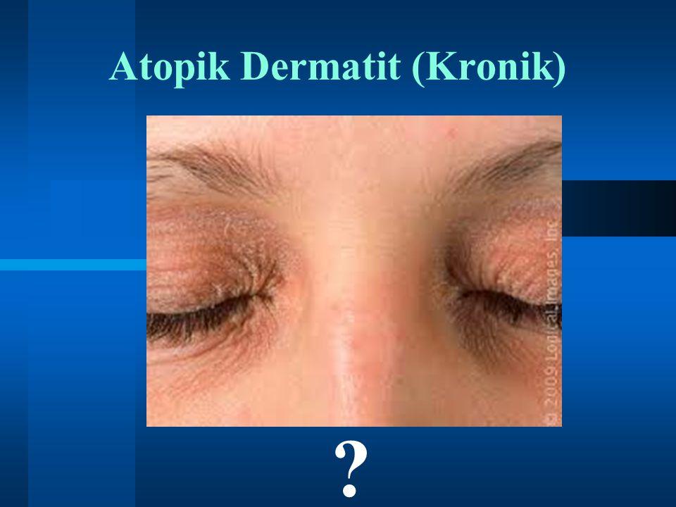 Atopik Dermatit (Kronik) ?
