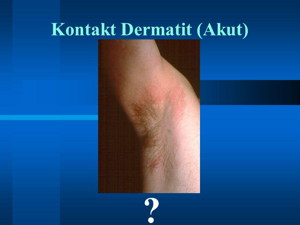 Kontakt Dermatit (Akut) ?