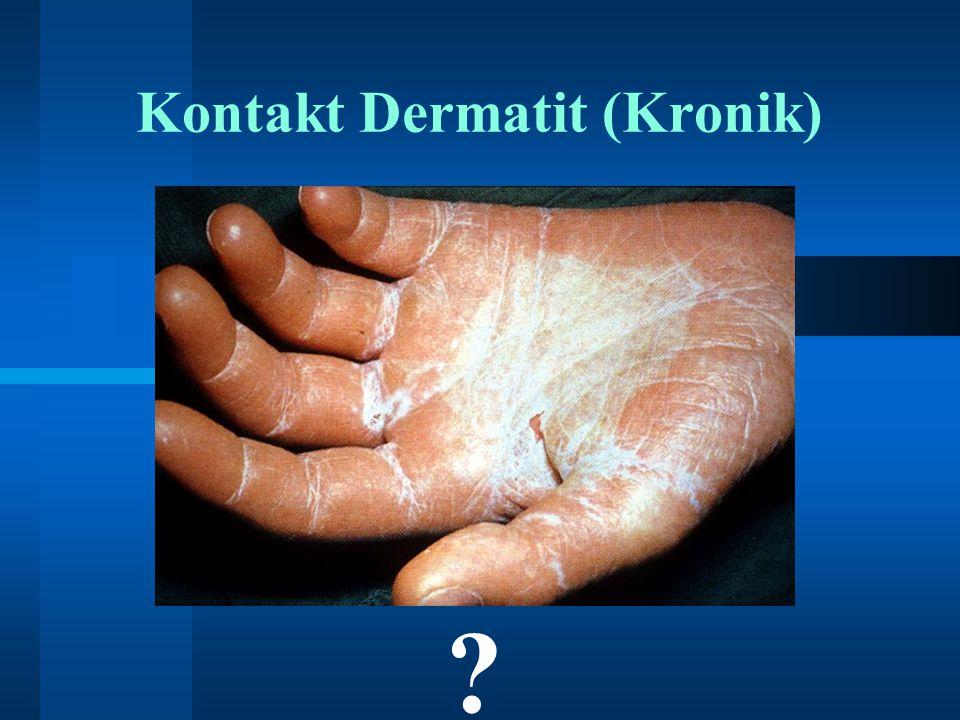Kontakt Dermatit (Kronik) ?