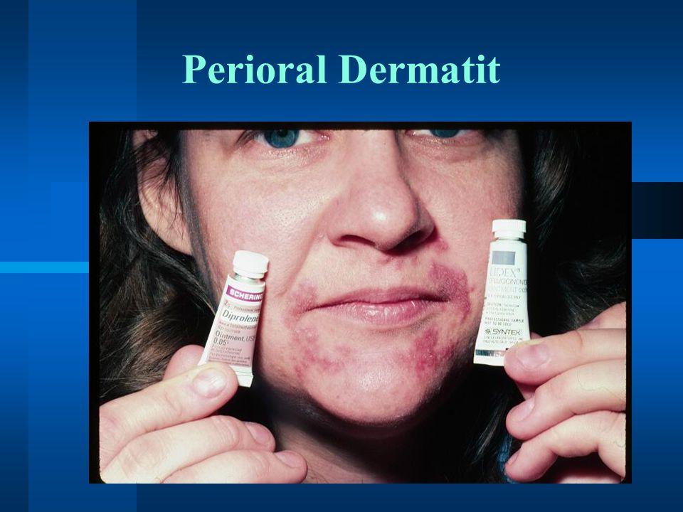 Perioral Dermatit