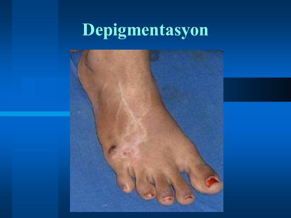 Depigmentasyon