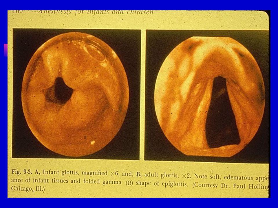 ÇocukErişkin Dil Göreceli büyükNormal Epiglottis Gevşek,, poteriora açılanmış sert Vocal cord angle EğimliDüz Glottis C3-C4 seviyesindeC5 seviyesinde