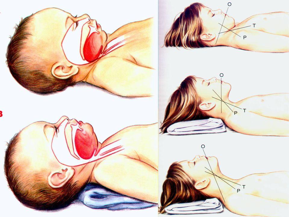 irway Head-tild/chin lift Servikal travma ?(jaw thrust) Oral kaviteyi temizle Oral airway Larengeal maske Orotrakeal entübasyon (RSI kriterleri) Kriko