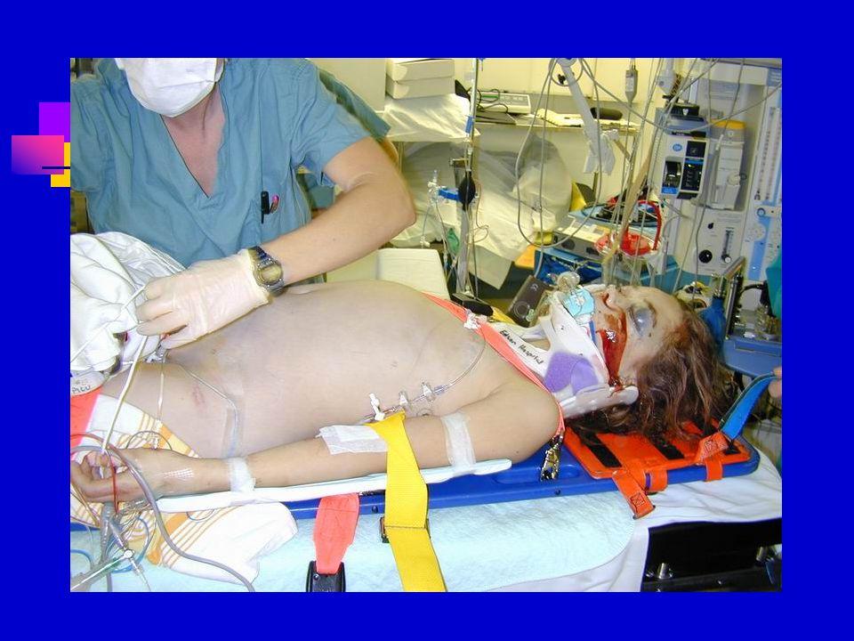 Abuse ( non accidental trauma )SSS İnterhemisferik(falx kanaması), subdural hematom, bazal ganglia ödemi, artmış BOS miktarı Oftalmolojik Retinal hemo