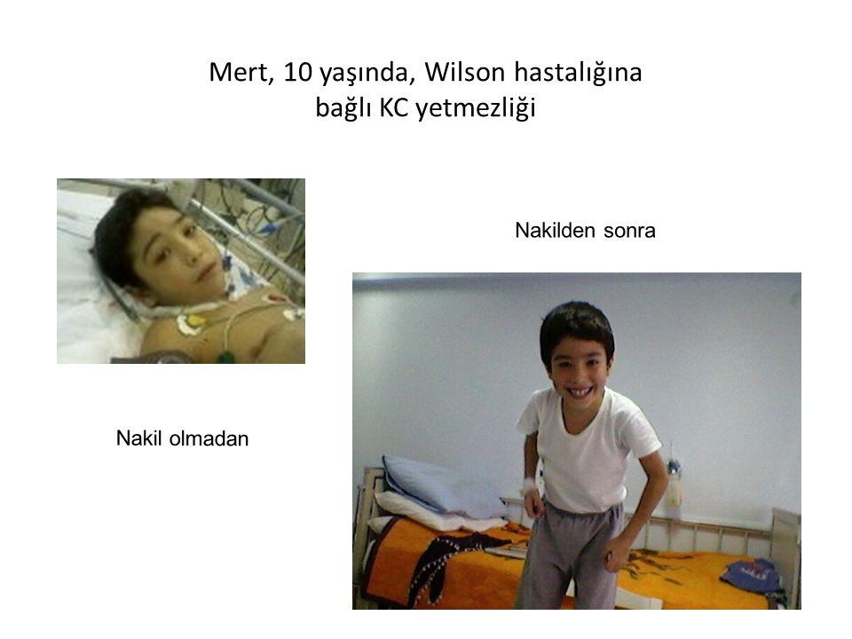 Mert, 10 yaşında, Wilson hastalığına bağlı KC yetmezliği Nakil olmadan Nakilden sonra