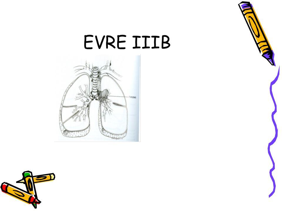 EVRE IIIB