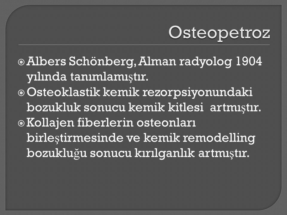  Albers Schönberg, Alman radyolog 1904 yılında tanımlamı ş tır.