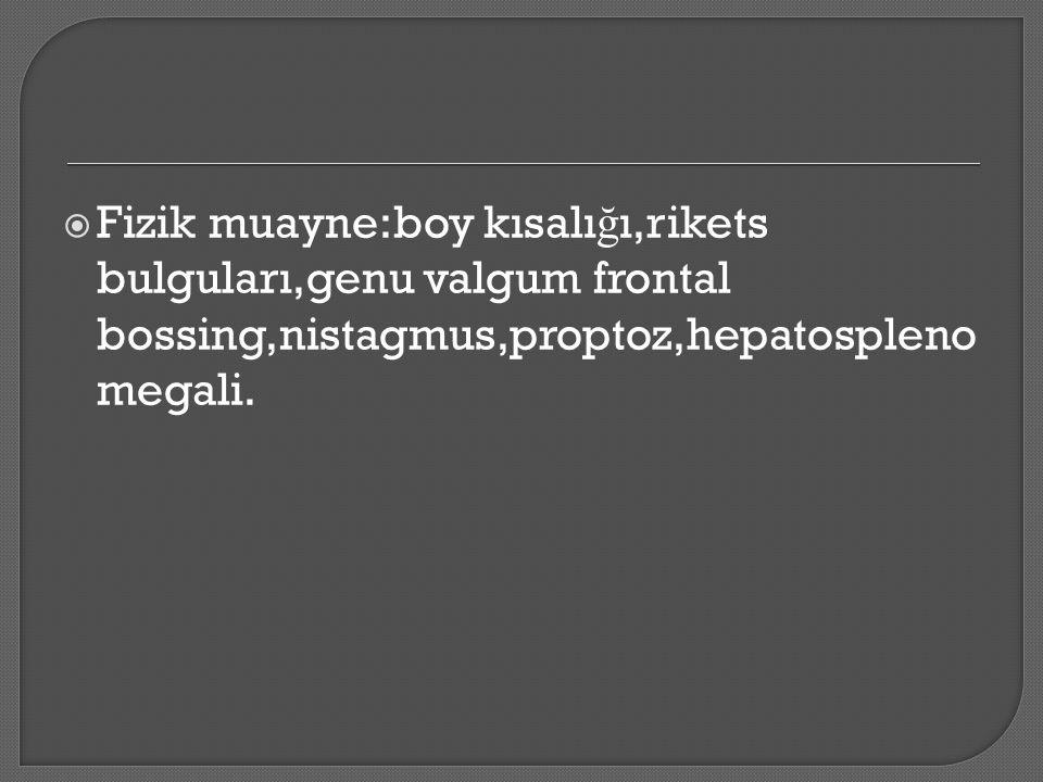  Fizik muayne:boy kısalı ğ ı,rikets bulguları,genu valgum frontal bossing,nistagmus,proptoz,hepatospleno megali.