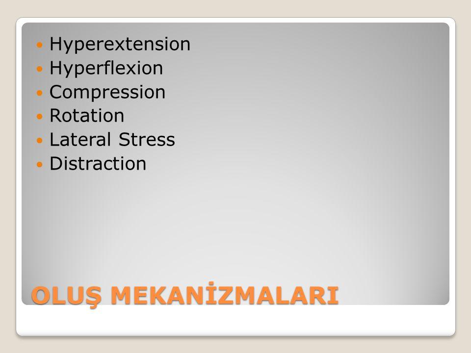 Klinik bulgular Sinir kökünün inflamasyonuna bağlı sırt ağrısı.